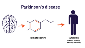 Parkinson's Disease - Advancells