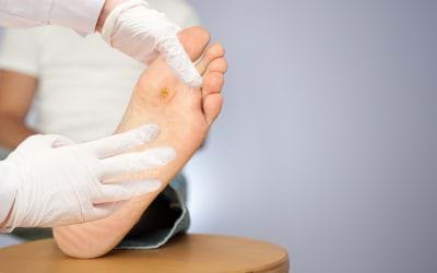 RISK FACTORS FOR DIABETIC FOOT ULCERS