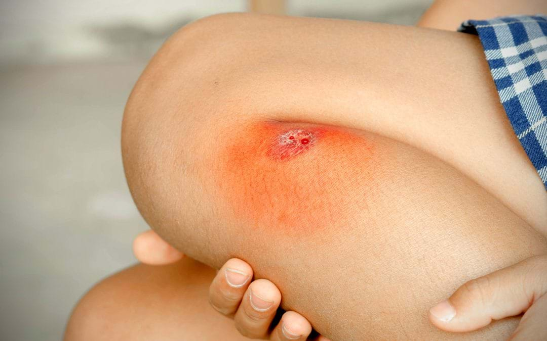 STEM CELL TREATMENT FOR WOUND HEALING