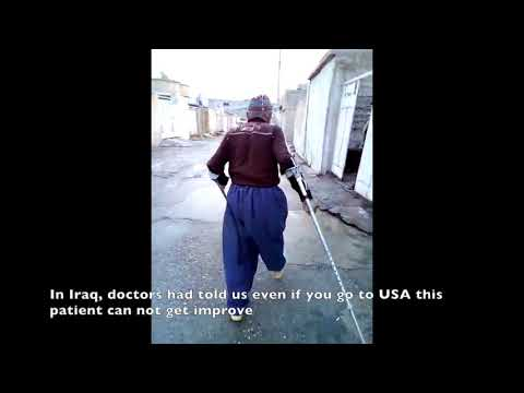Mohammad Qadir, Cervical Injury Patient Testimonial, Review | Iraq