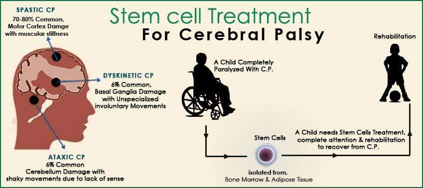 Stem cell Therapy for Cerebral Palsy - Advancells