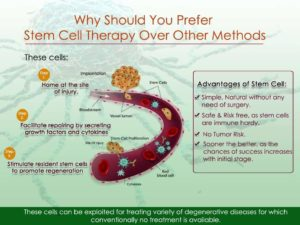 Benefits of Stem Cell Therapy - Advancells