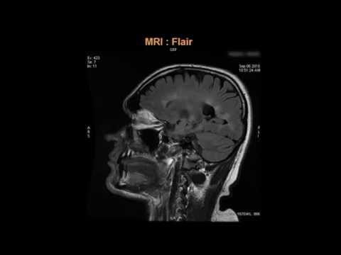 Multiple Sclerosis Treatment Video