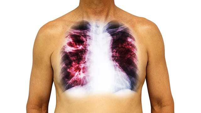 Pulmonary Fibrosis Disease Treatment by Stem Cell Therapy
