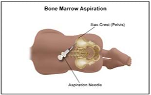 bonemarrow stem cell extraction