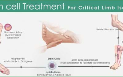 The Critical Limb Ischemia: The silent killer