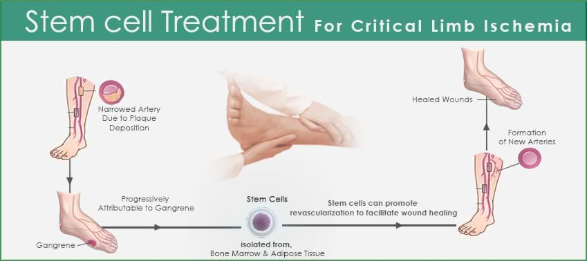 Critical-Limb-Ischemia-process-galimg