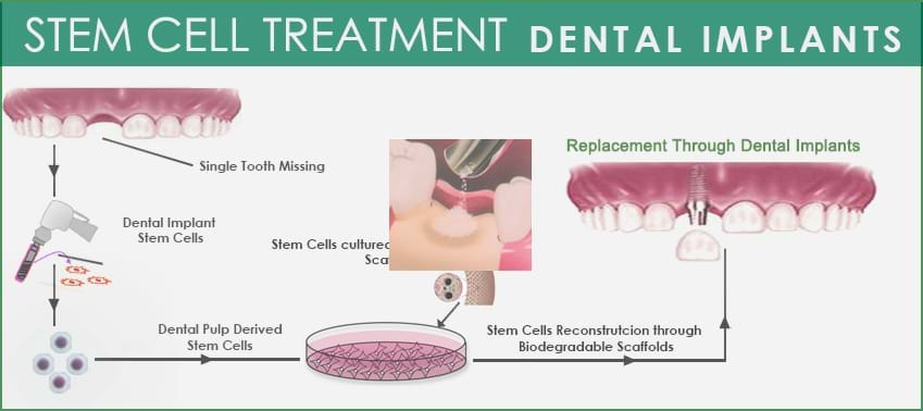 Dental-Implant-process-galimg