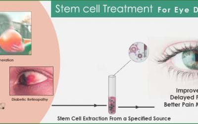 Stem Cell Therapy for Macular Degeneration in India