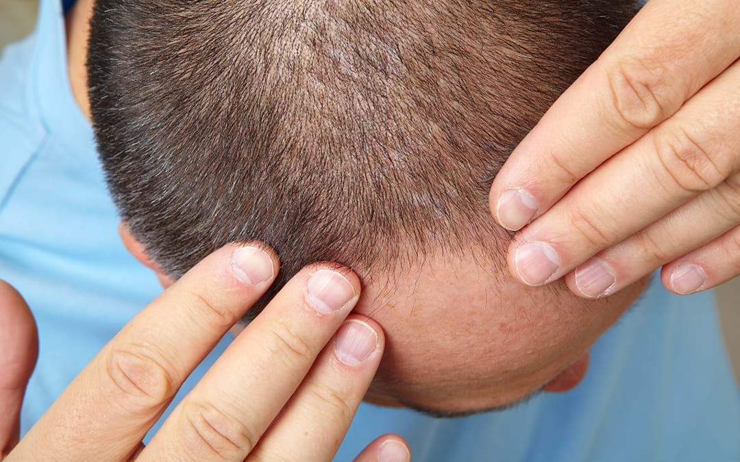 HOW DO I FIND THE BEST STEM CELL THERAPY FOR HAIR LOSS IN DELHI?