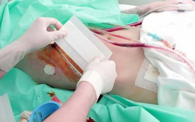 IS TRANSPLANT THE ONLY OPTION FOR CHRONIC KIDNEY DISORDERS?