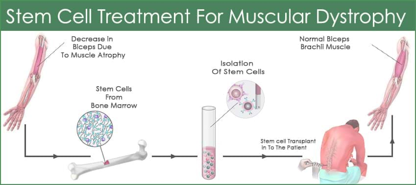 Muscular-Dystrophy-process-galimg
