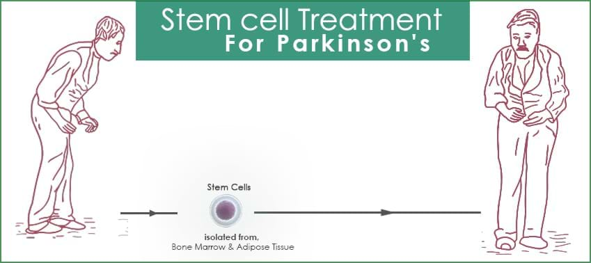 Parkinsons-process-galimg
