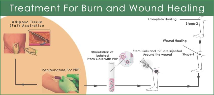 Wound-Healing-process-galimg