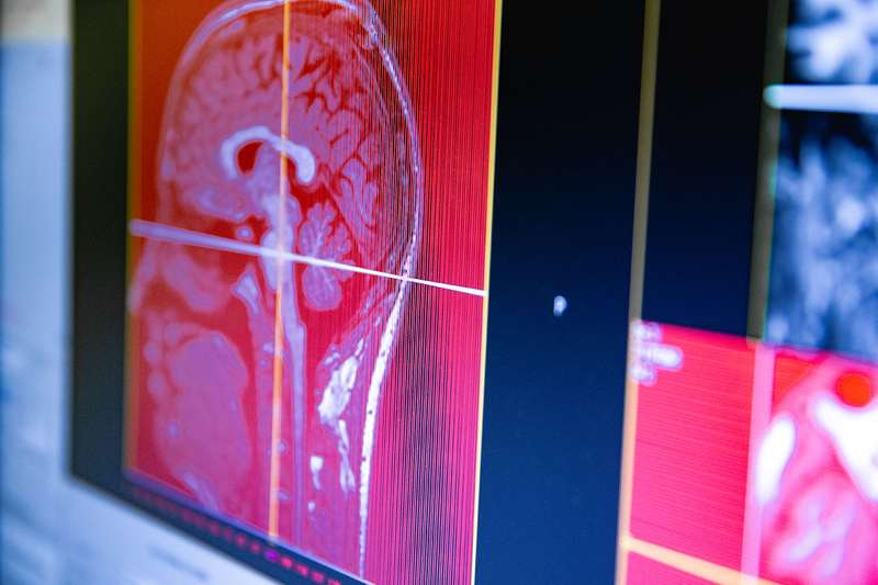 STEM CELLS IMPLANTED INTO THE BRAIN