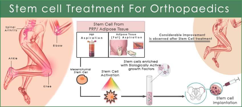 ortho--process-galimg