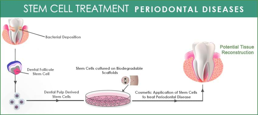 periodontal-disease-process-galimg