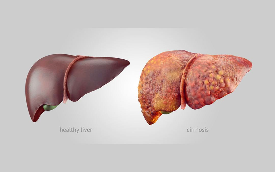 tem Cell Therapy For Liver Cirrhosis