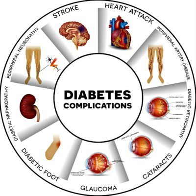 Diabetes and its Associated Complications: A Brief Overview