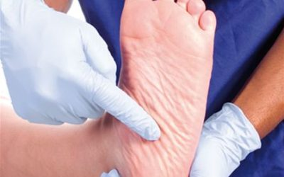 Increased Risk of Ulcers and Damage to the Feet in Diabetes