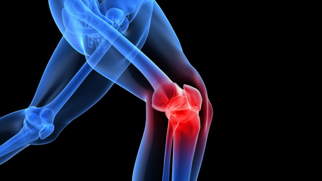 Is Knee Replacement Surgery the only option?