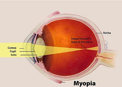MYOPIA CAN MAKE YOUR WORLD BLURRY!