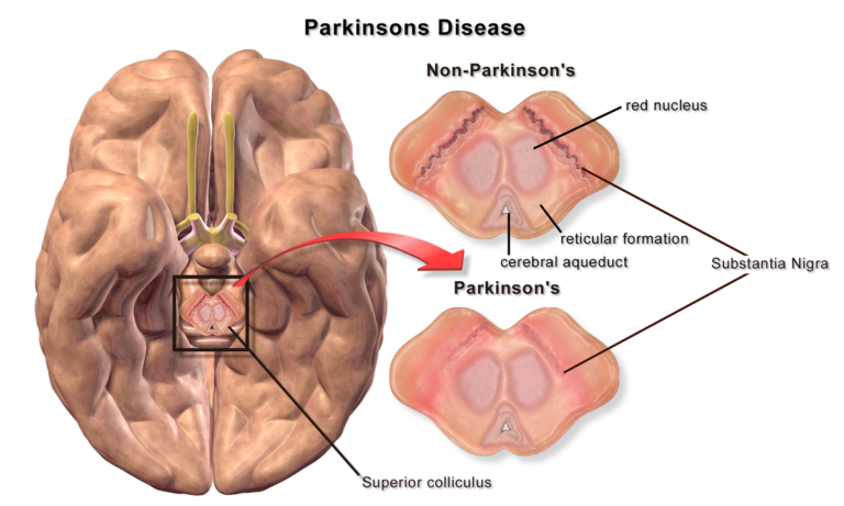 What You Need to Know about Parkinson's disease?