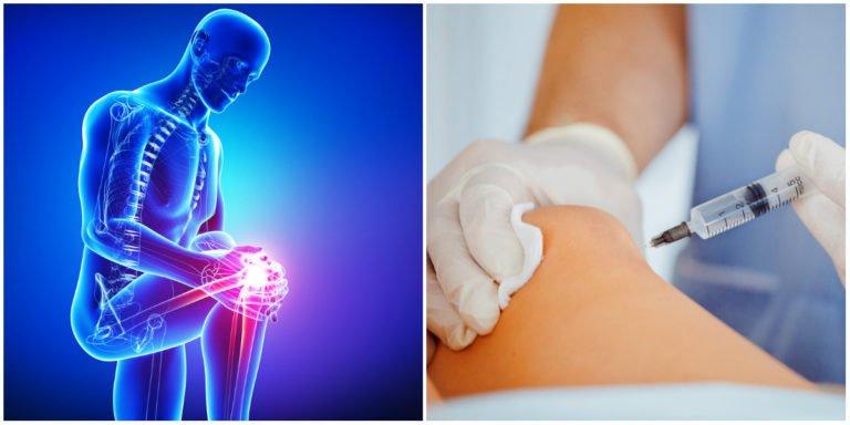Stem Cell Treatment for Torn Knee Meniscus