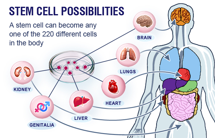 Stem Cell Treatment that you might not expect