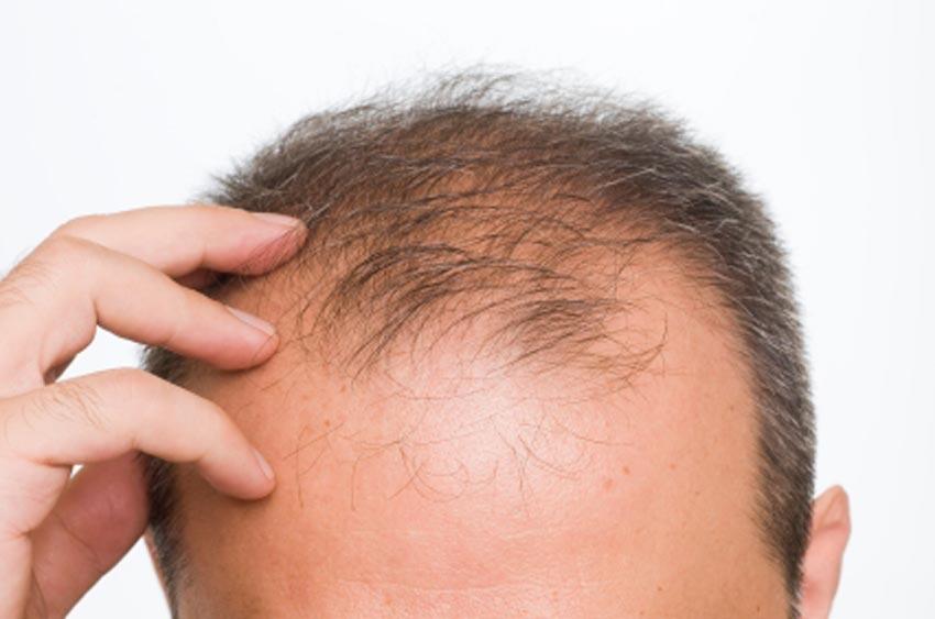 STEM CELLS TO MAKE HAIR GROW