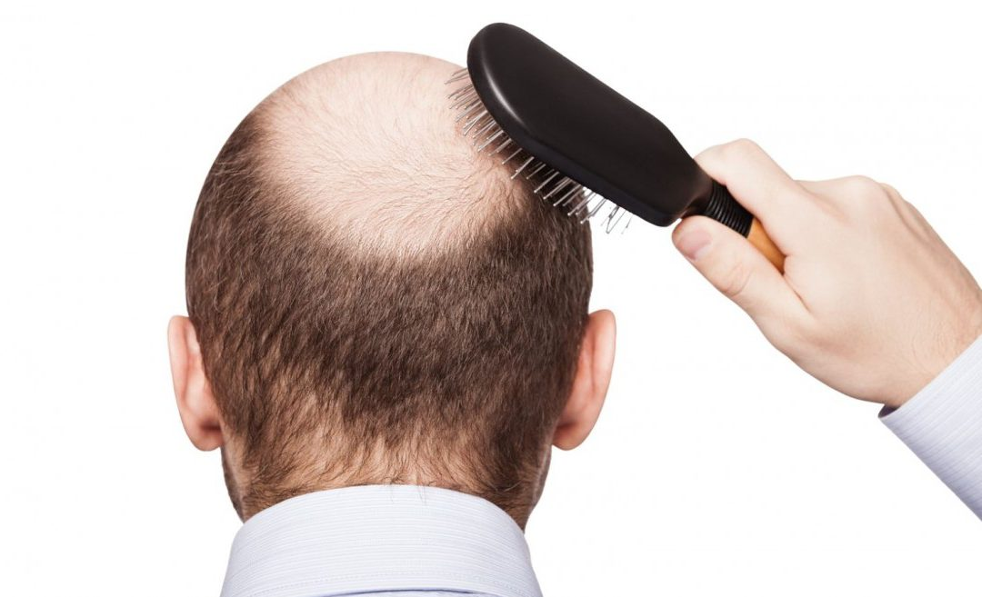 HOW TO REDUCE HAIR LOSS BY STEM CELL THERAPY