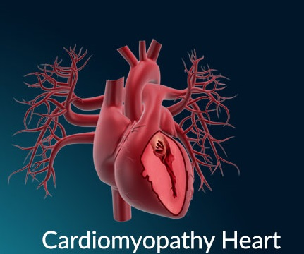 Is there any treatment for cardiomyopathy in stem cell therapy?