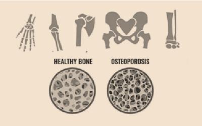 Is Regenerative Medicine the Osteoporosis elixir?