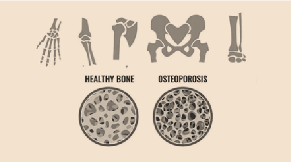 Is Regenerative Medicine the Osteoporosis elixir?