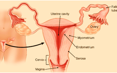 Nutrition Can Improve Endometrial Thinning