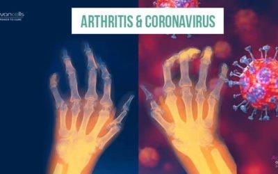 Arthritis and Coronavirus: What You Need to Know?