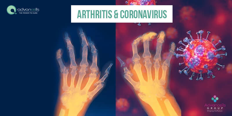 Arthritis and Coronavirus: What You Need to Know?