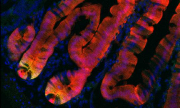 stem cell web