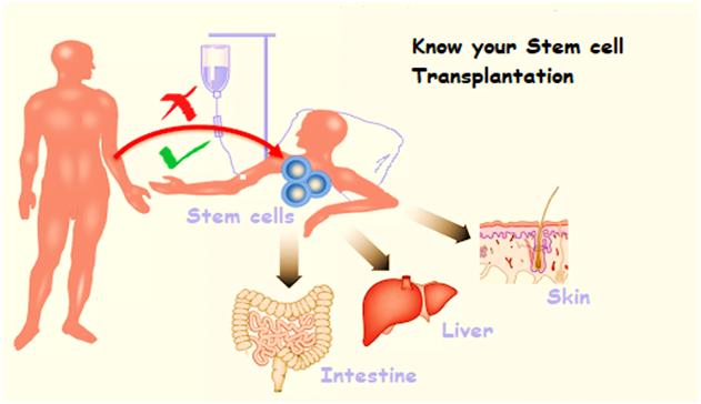 Is Stem Cell Transplant Safe?