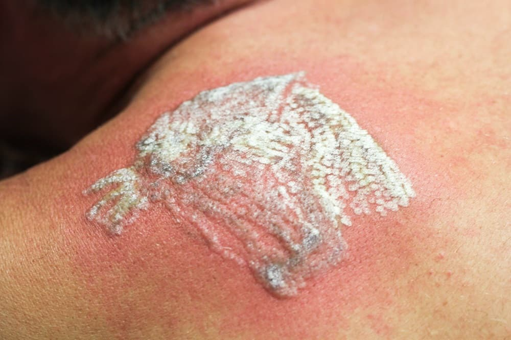 side effects of tattoo removal by laser