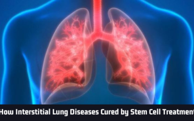 How Interstitial Lung Diseases Cured by Stem Cell Treatment?