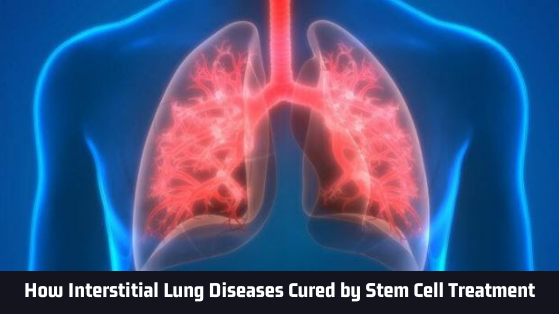 Interstitial Lung Diseases Cured by Stem Cell Treatment - Advancells