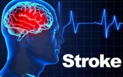 Is It Worth To Have Stem Cell Therapy For Stroke Patients?