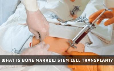 What Is Bone Marrow Stem Cell Transplant?
