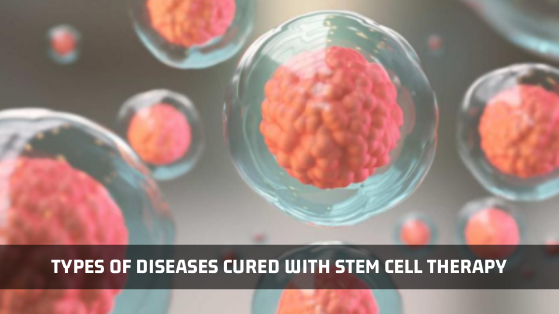 Types Of Diseases Cured With Stem Cell Therapy