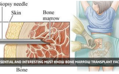 Essential And Interesting Must Know Bone Marrow Transplant Facts