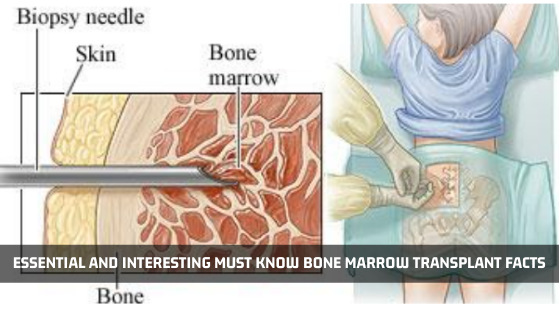 Bone Marrow Transplant Facts - Advancells