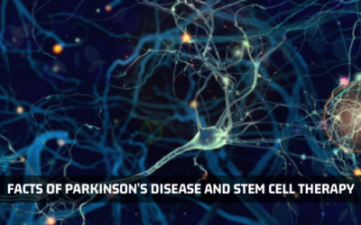 Facts Of Parkinson's Disease And Stem Cell Therapy