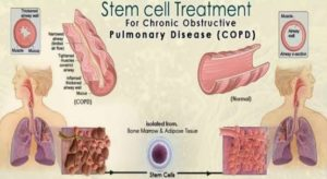 Stem Cell Treatment for Chronic Obstructive Pulmonary Disease (COPD)