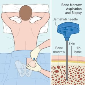 Bone Marrow Transplant | Advancells